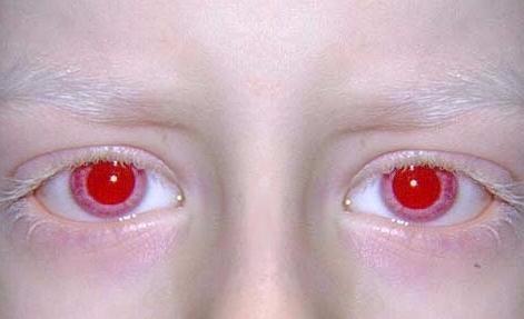 albino11.jpg?type=w2