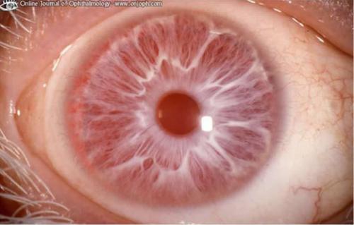 albinism_ocular_findings.jpg?type=w2