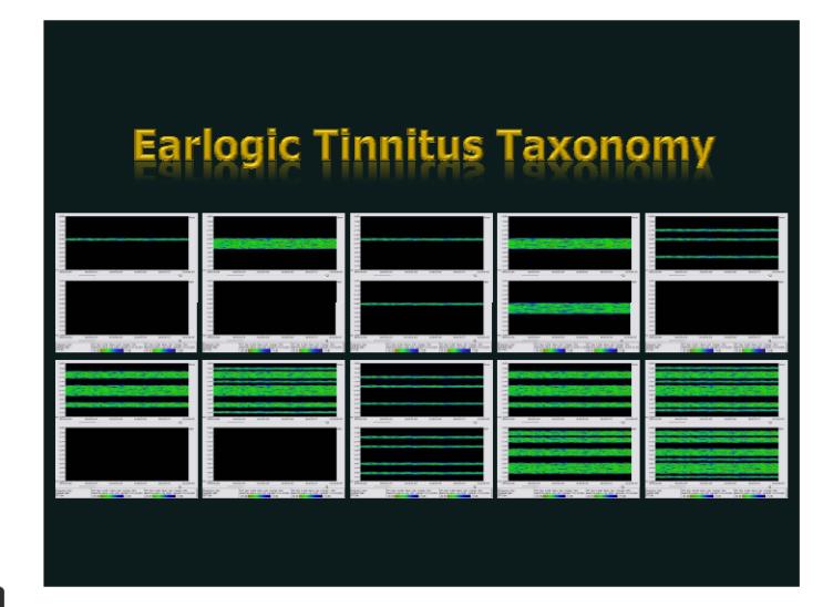 이명 개선 방법 - TSC - I48 밖에는 대안이 없다