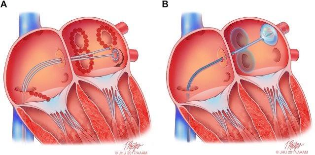 전극도자절제술 2