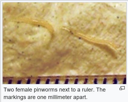 paraziták emberben helminták