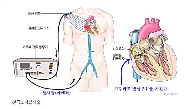 전극도자절제술1