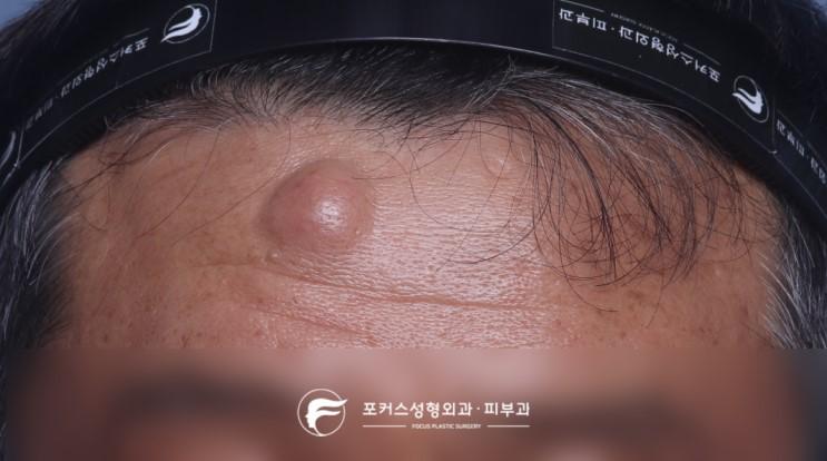 [부천성형외과 Dr. 김 칼럼] 이마의 혹