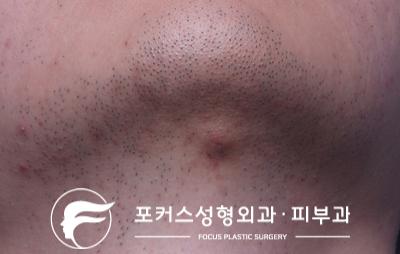 턱의 혹 - Dr. 김 칼럼