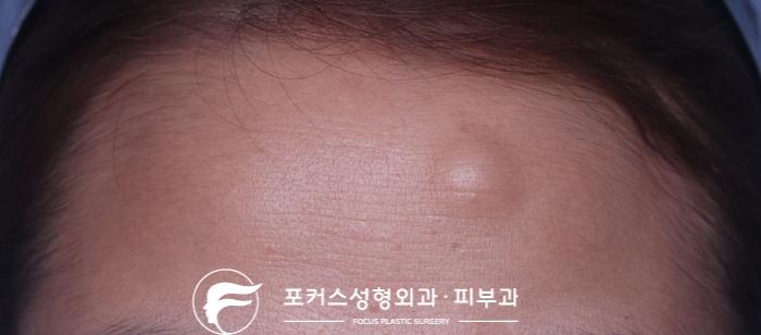 [부천성형외과 Dr. 김 칼럼] 이마의 단단한 혹