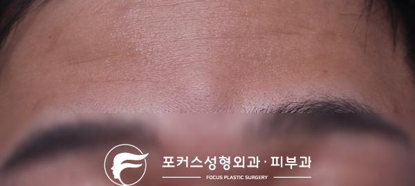 [부천성형외과 Dr. 김 칼럼] 미간의 혹