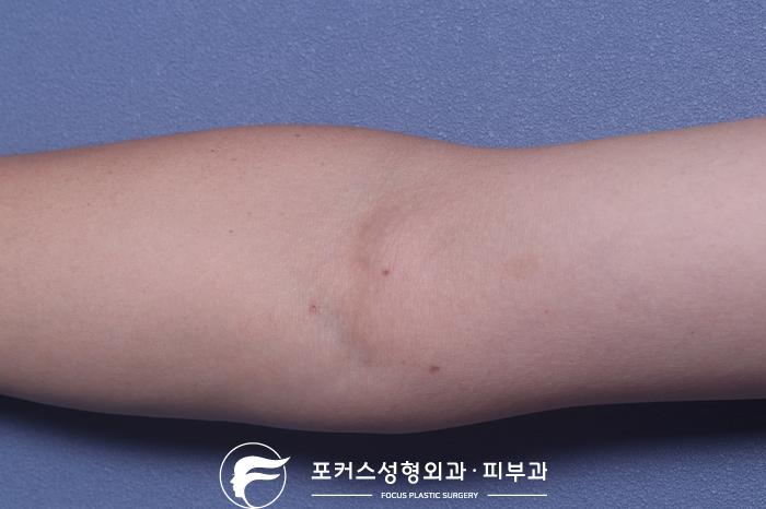 [부천성형외과 Dr. 김 칼럼] 오른쪽 팔의 혹