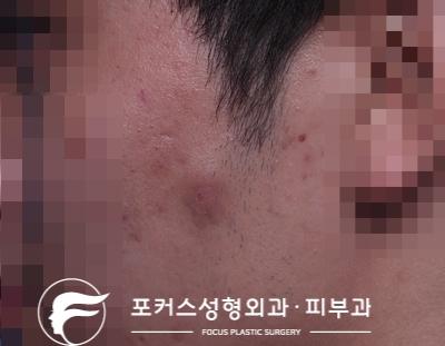 [부천성형외과 Dr. 김 칼럼] 왼쪽 볼의 혹