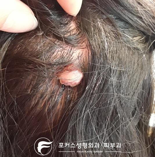 두피의 혹(화농성 육아종 - pyogenic granuloma)