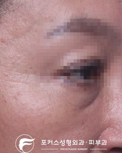 [부천성형외과 Dr. 김 칼럼] 눈밑꺼진 곳에 눈밑필러