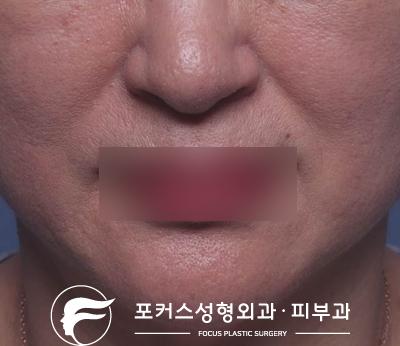 [부천성형외과 Dr.김 칼럼] 부천필러 - 팔자주름엔 팔자필러?