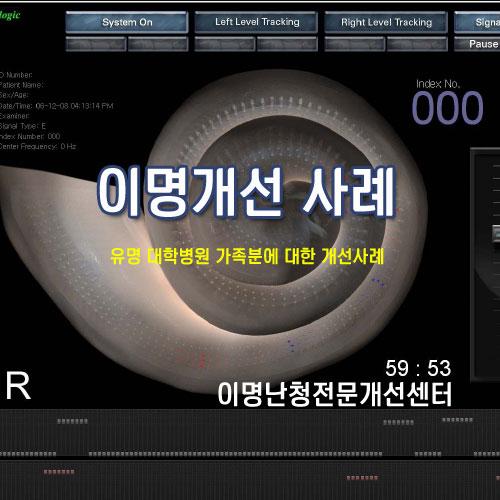 이명개선-유명대학병원 가족의 이명개선 사례