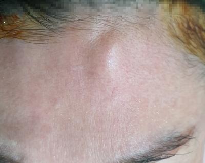 인천이마골종 , osteoma