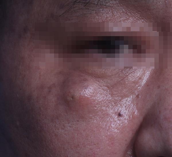 얼굴 피지낭 수술