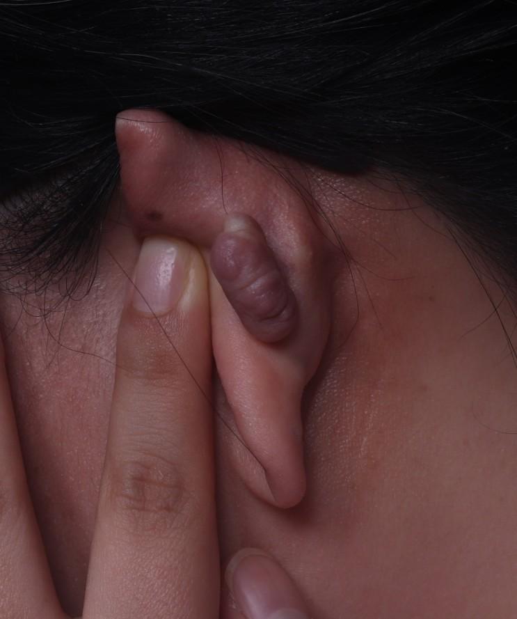 켈로이드가 귀에 있으면 부천FOCUS