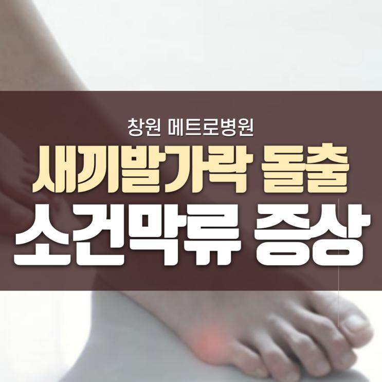 [창원족부외과] 새끼발가락이 튀어나왔어요. 소건막류 증상이란?