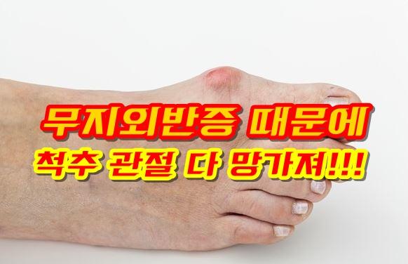 무지외반증 기능성신발로 교정된다