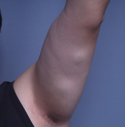 인천지방종 팔에 있는 여러개의 혹 제거수술