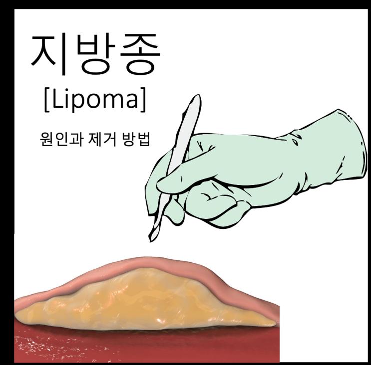 [지방종제거수술] 피부 밑에 생긴 혹 지방종의 원인 및 제거 방법