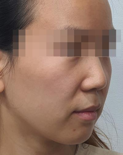 [부천성형외과 Dr. 김 칼럼]부천에서도 튠리프팅을 이용한 얼굴의 라인 정리 및 리프팅을