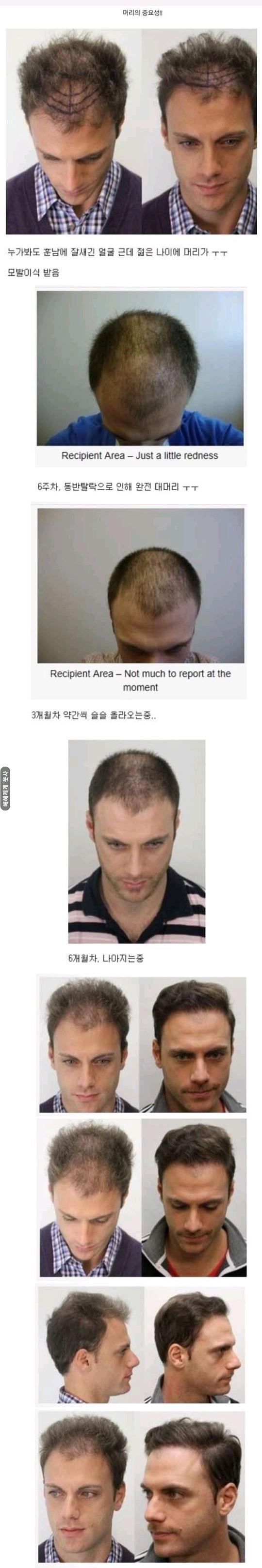 머리카락의 중요성