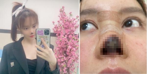중국 여배우 가오리우 성형 부작용 코 괴사