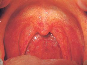 편도염 원인과 증상 (세균성, 만성, 급성)에 대한 이야기