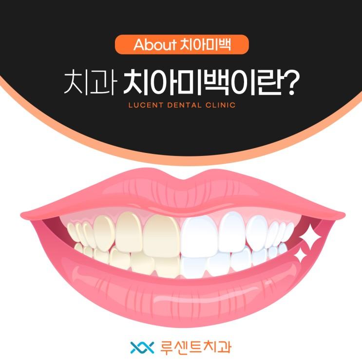 치과치아미백이란?
