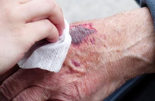 혈전 증상 및 혈전용해제 한번에 정리