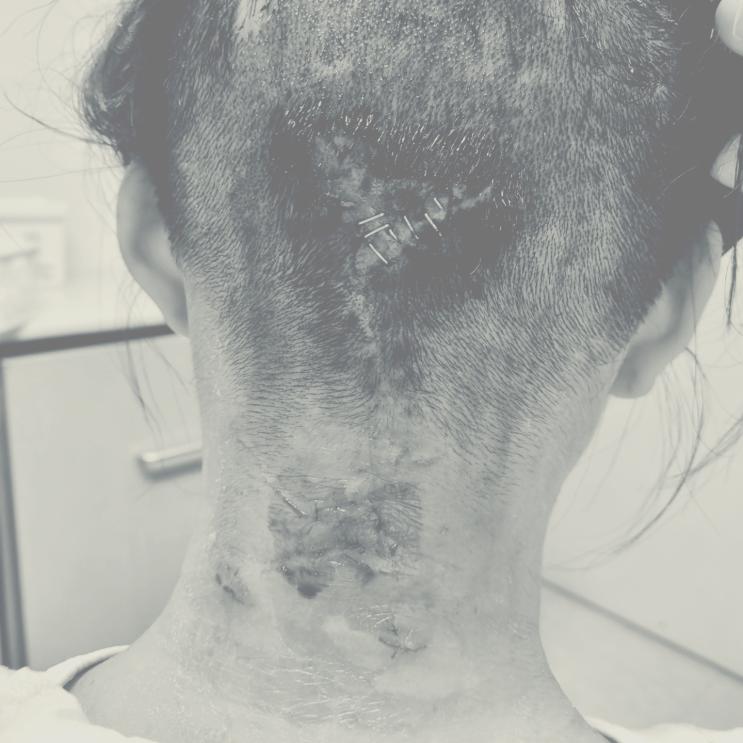 뇌종양 수술 후기 병상일기, 12일차 (산정특례신청)