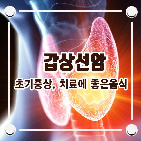 갑상선암 초기증상 및 치료에 좋은 음식