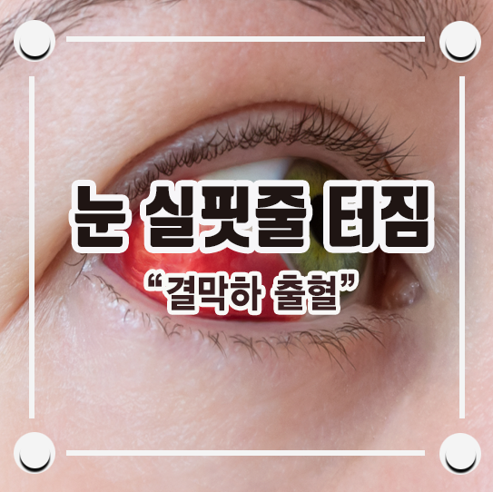 눈 실핏줄 터짐 일으키는 결막하출혈 알아보자