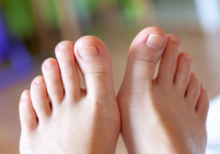 엄지발톱 가로줄 여러가지 원인과 예방법