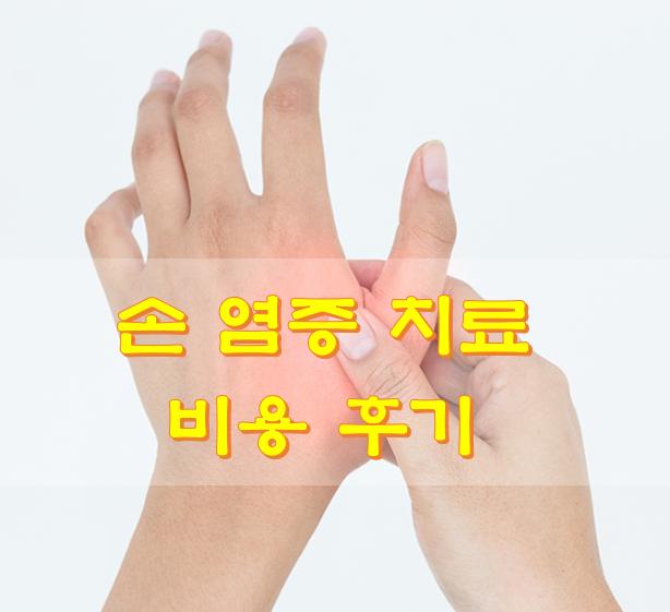 손 염증 치료 비용 후기