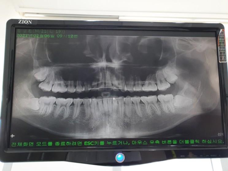 치위생사: 마취는 약 2시간 후에 풀립니다.