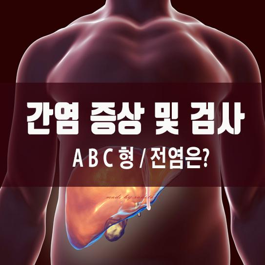 A형 B형 C형 간염(급성)증상 및 검사, 전염은?