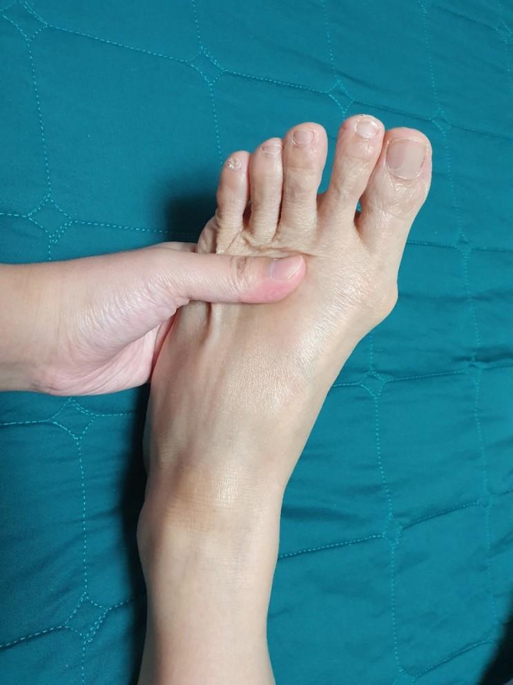 엄지발가락 통증(휨, 통풍, 염증) 및 새끼발가락 통증(골절) / 발바닥 물집