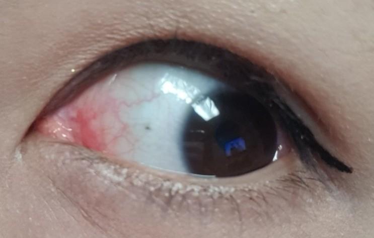결막염 증상 눈충혈 원인(유행성 알레르기성 알레르기 결막염)